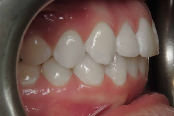 buccal right